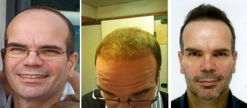 Hair Transplant in Turkey  German Estetica
